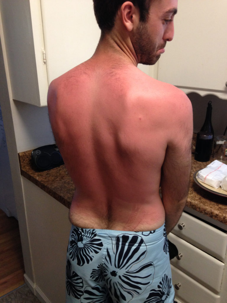 The boyfriend got burnt, so I made this for next time: Homemade Waterproof Sunscreen (SPF 40)